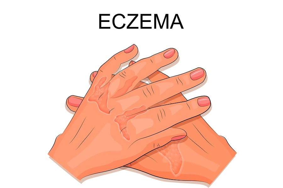 31 Essential Oils for Eczema (Natural & Effective Treatment)
