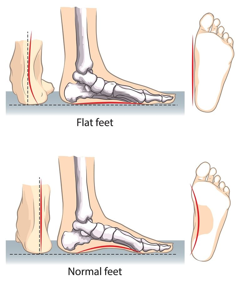 flat and normal feet