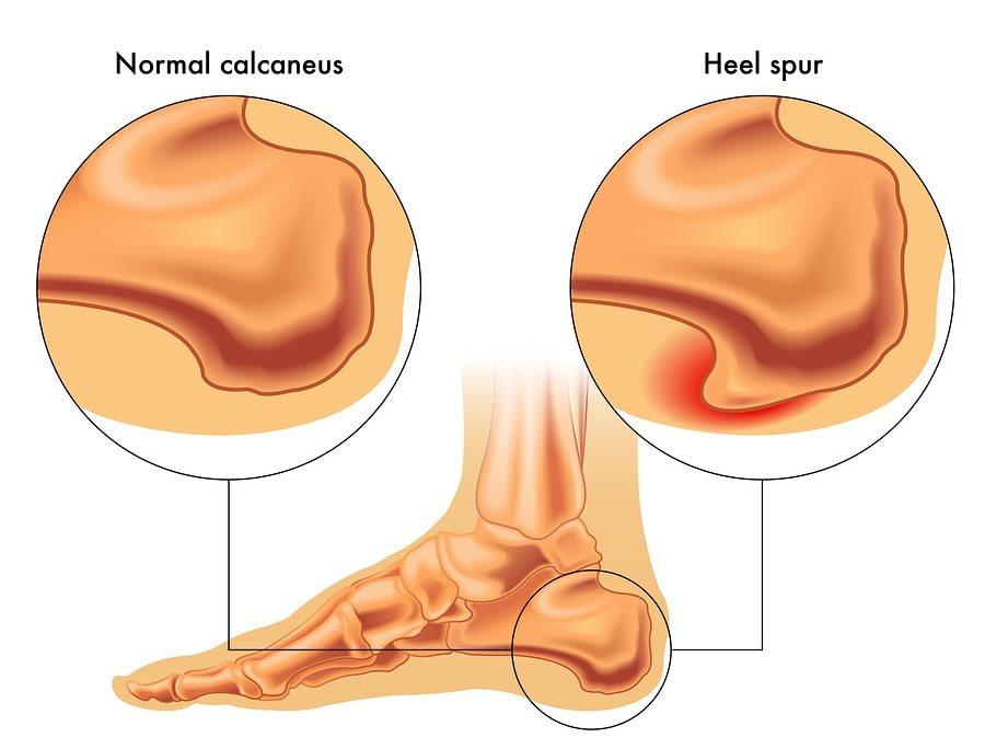 Essential Oils for Bone Spurs (Osteophytes)