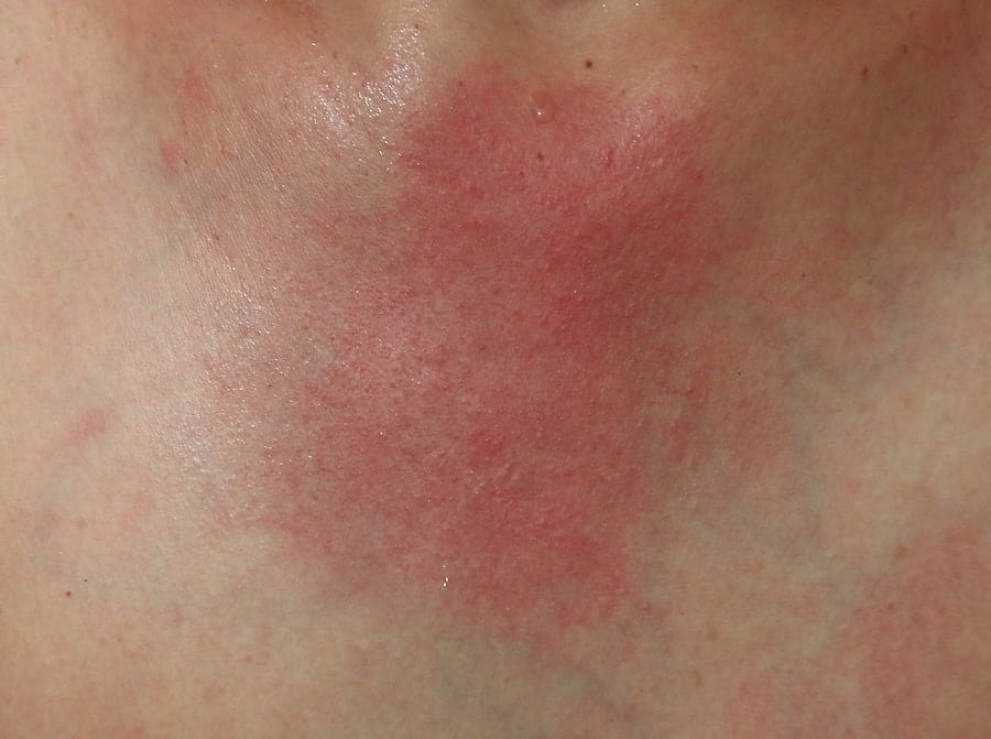 9 Essential Oils for Rashes (Dry, Itchy, Skin Relief)