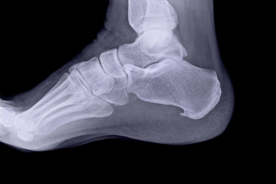 X-Ray of a foot showing a heel spur